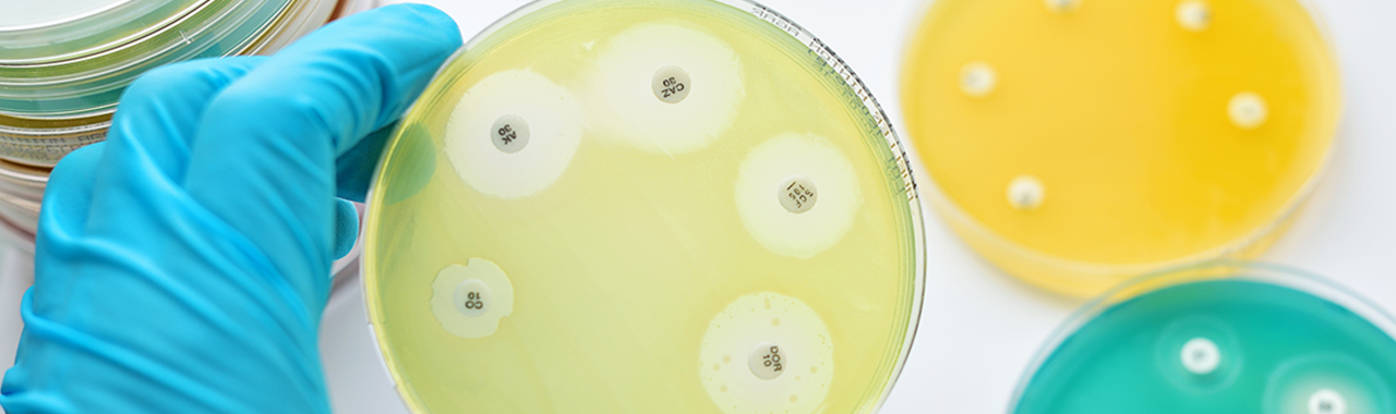 Cell-on-Chip – 10 Fakten für erfolgreiche Zellkultivierung